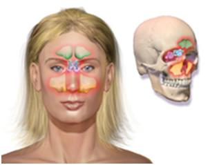 Rinosinusitis o Sinusitis1